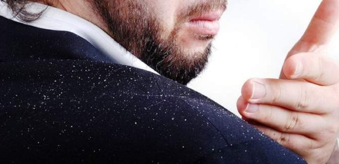 50 Natural ways to treat dandruff