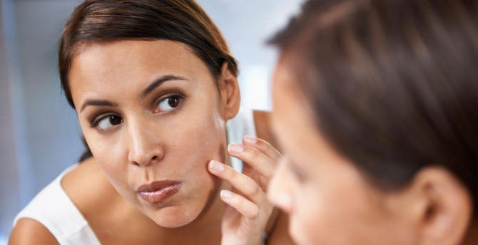 12 Home Remedies for Acne Scars