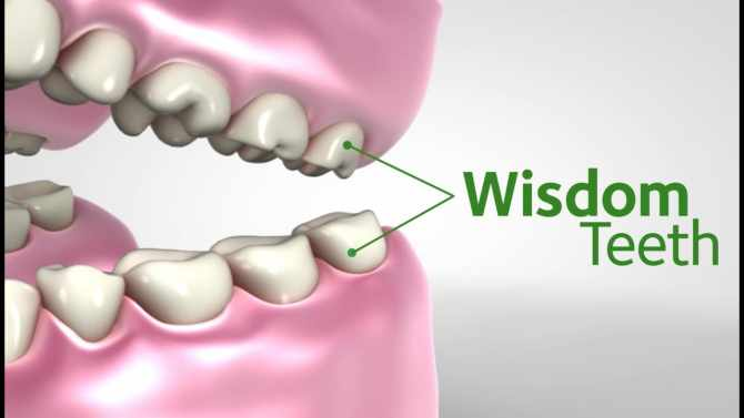 Wisdom Teeth Symptoms: When They Come & Why Needs To Remove?