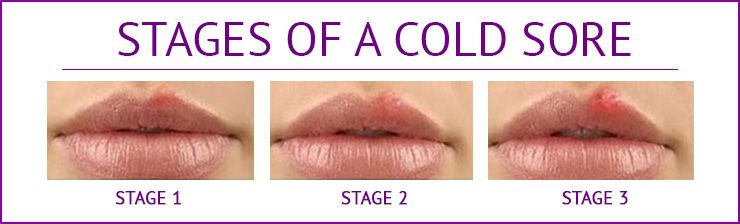 Everything you should know about the Cold sore
