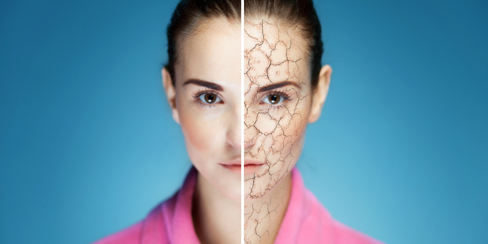 Dry Skin Symptoms, Causes, and Best Foods for Dry Skin